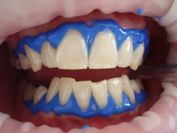 يتم استخدام تبييض الأسنان بالليزر والهلام على نطاق واسع في هذا الوقت